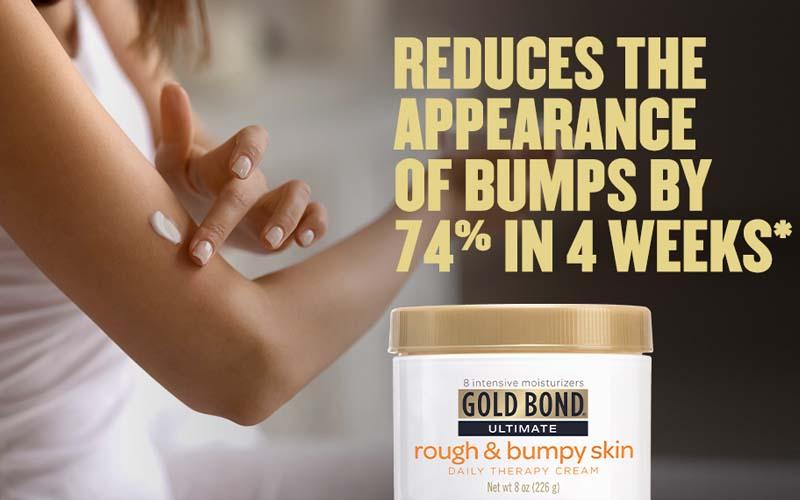 gold-bond-rough-bumpy-skin-cho-da-kho